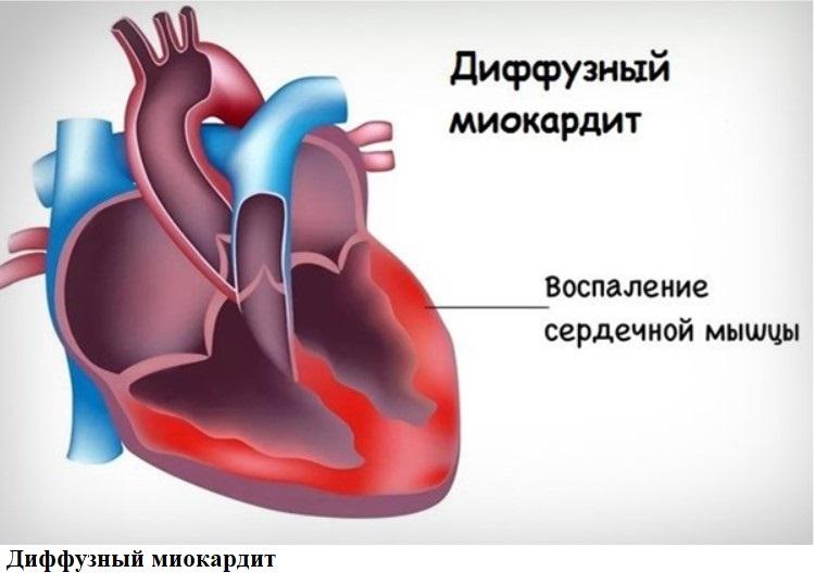 Диффузный миокардит