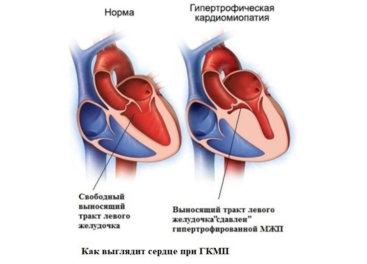 Как выглядит сердце при ГКМП