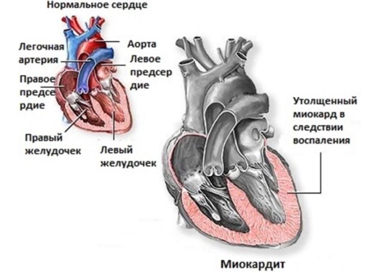 Изменение мышечной структуры сердца